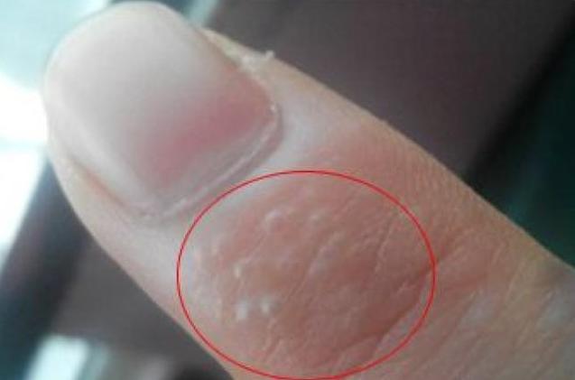 夏天手指就长小水泡的症状表现和资料思路(汗疱疹的症状分析和用药)